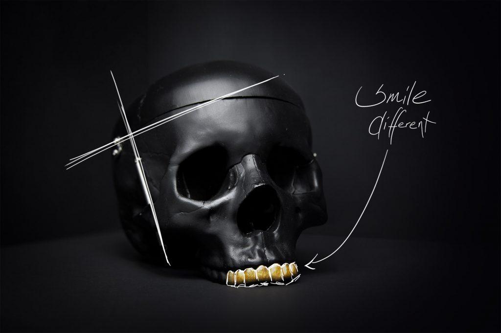 Grillz - Smilez and Shine - Berlin Jewelery - Individueller Zahnschmuck - Smile different